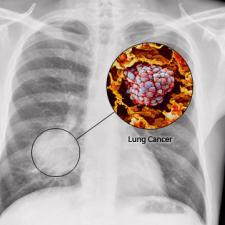 longkanker-foto