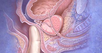 prostaatkanker