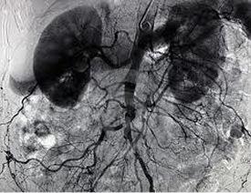 Angiografie onderzoek
