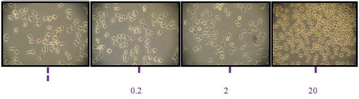 pancreas-kankercellen-genezing